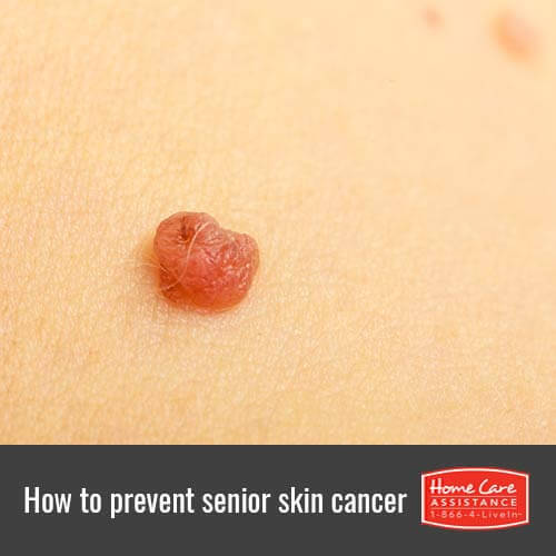 Protecting Seniors from Skin Cancer in Oakville, ON